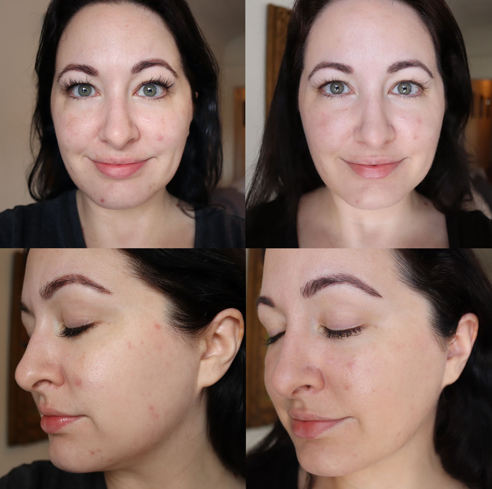 Banish Skincare - Cruelty Free Acne Scar Treatment - Before and After