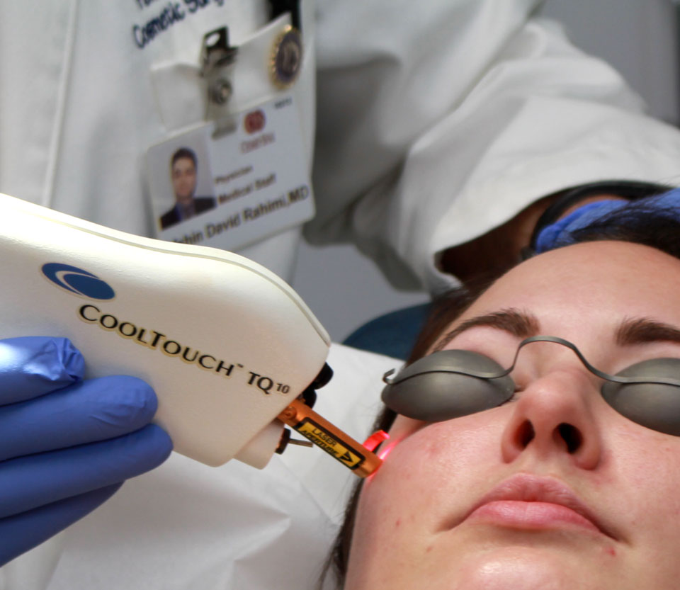 Cool Touch Laser for Acne