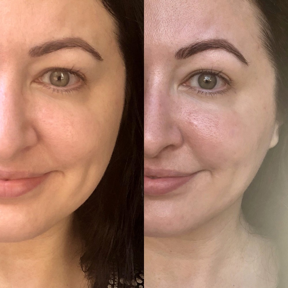 Verabella Microcurrent Before and After