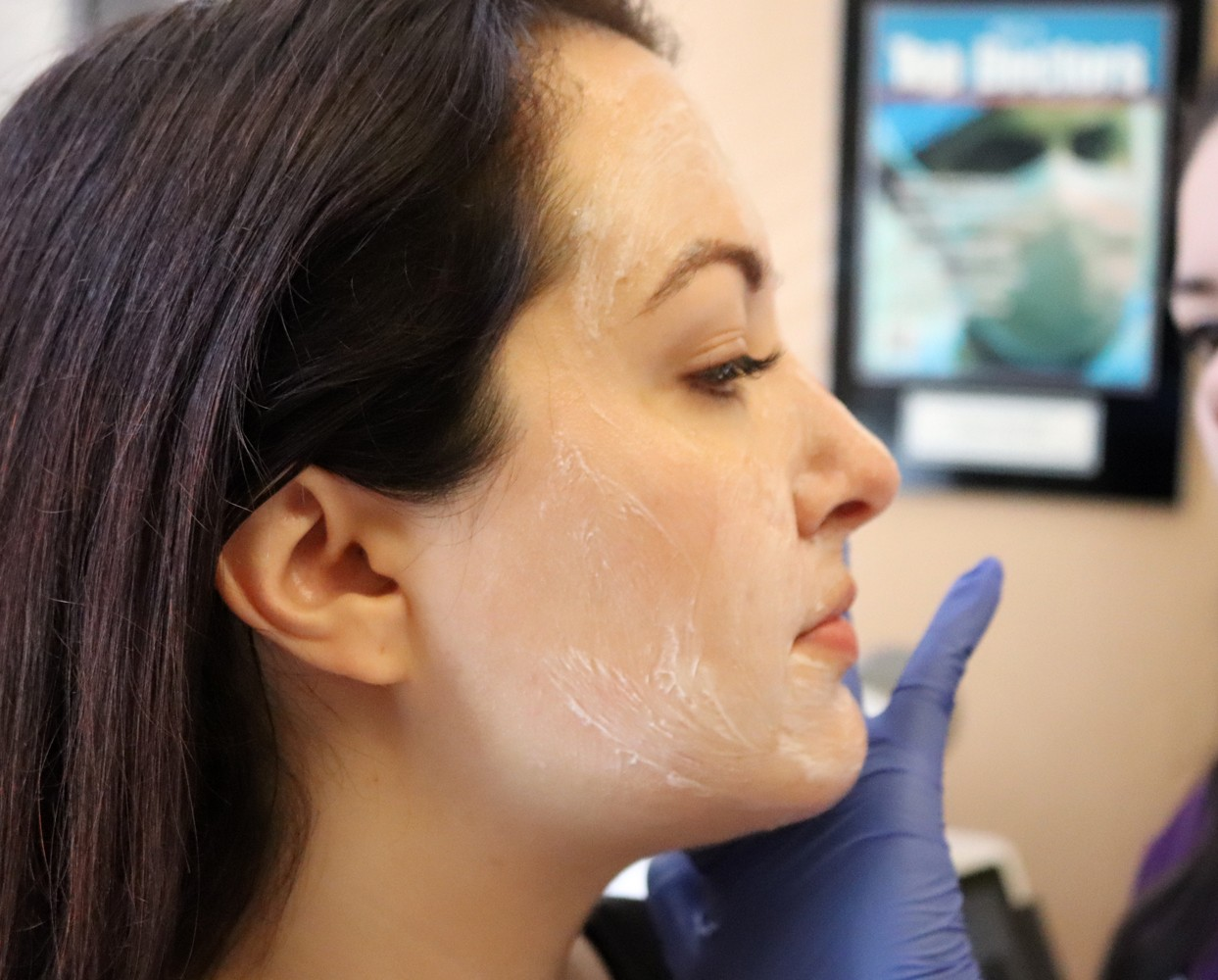 PiQo4 Laser - the Only Melasma Treatment that has Ever Worked for Me! featured by popular Los Angeles cruely free beauty blogger My Beauty Bunny