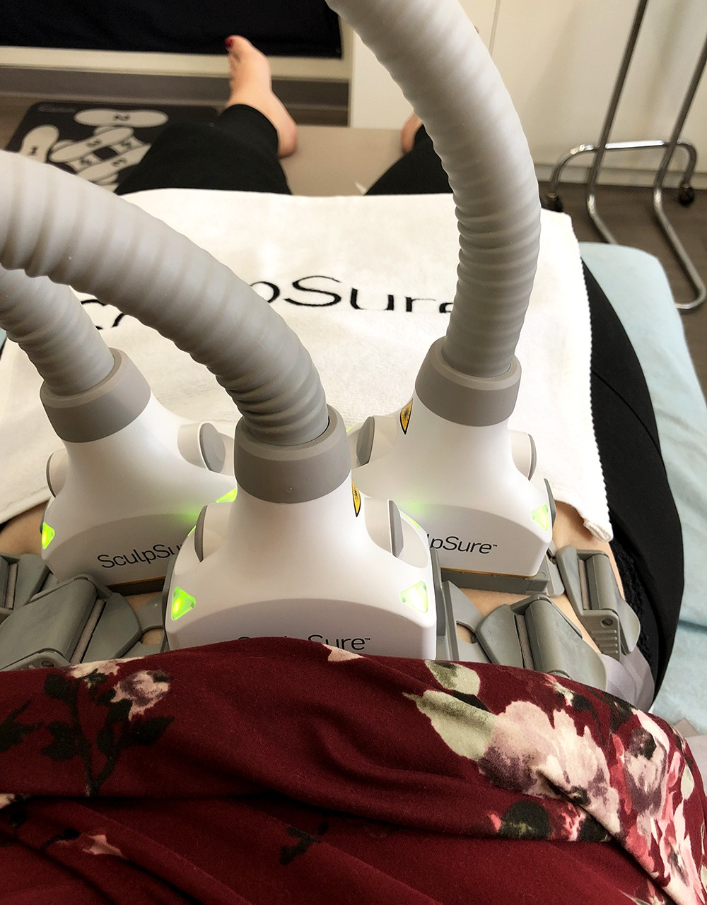 Upper Abdomen SculpSure Treatment at LaserXX - Review