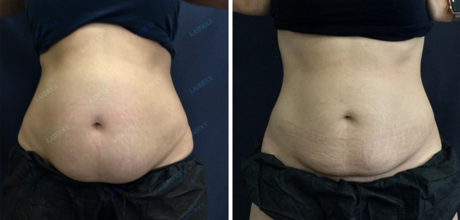 SculpSure Before and After LaserXX med spa in Los Angeles